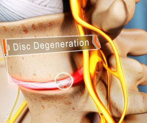 LOS ANGELES SPINAL DECOMPRESSION®